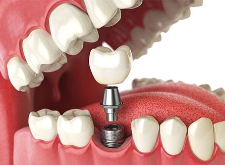 Cedar Lodge Dental